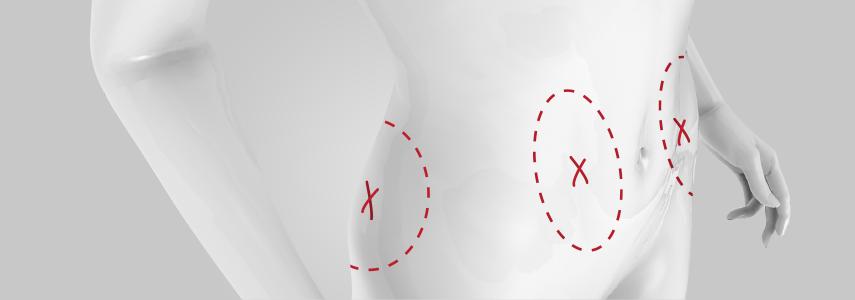 vucut-liposuction